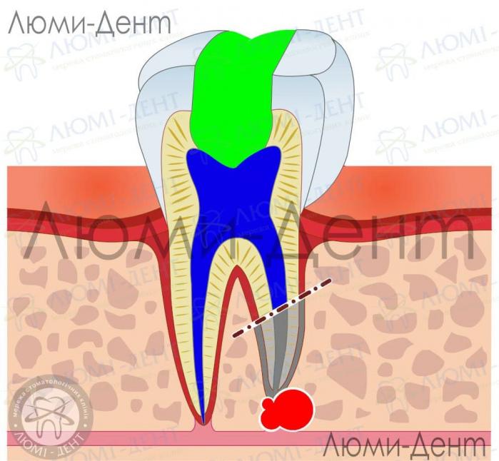 гемисекция зуба фото ЛюмиДент