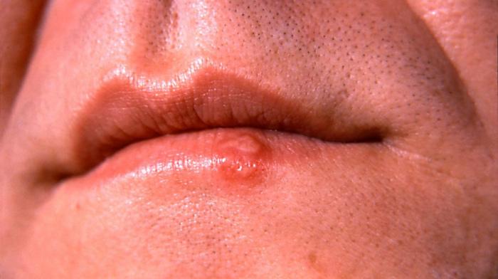Простуда на губе фото Люмидент