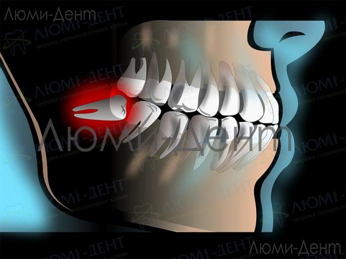 Гной после удаления зуба мудрости фото ЛюмиДент