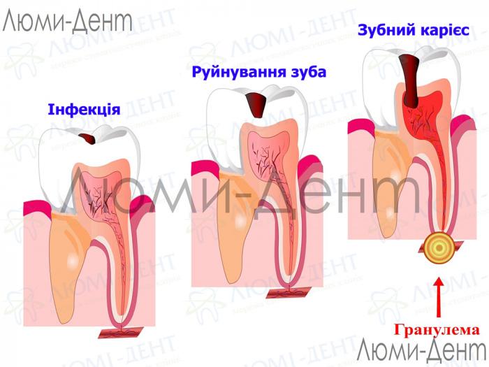 Гранулема зуба фото Люмі-Дент