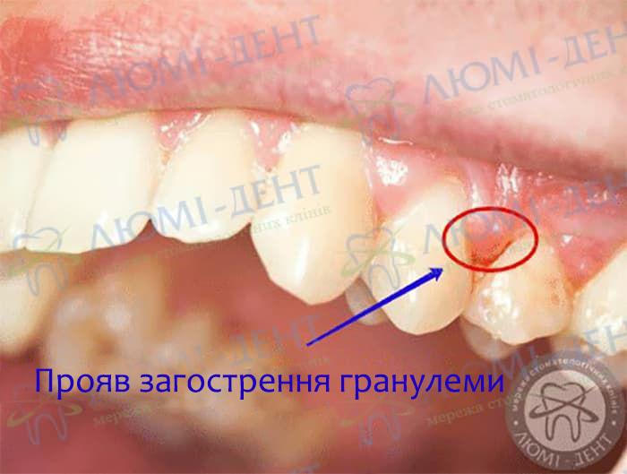 Що таке гранулема зуба фото Люмі-Дент
