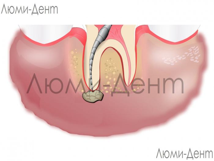 Лікування гранулеми зуба фото Київ ЛюміДент