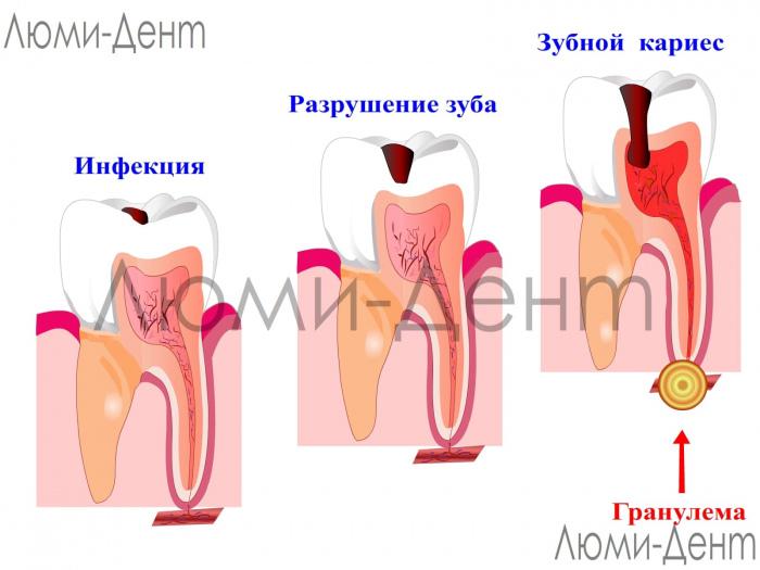 Гранулема зуба фото Люми-Дент