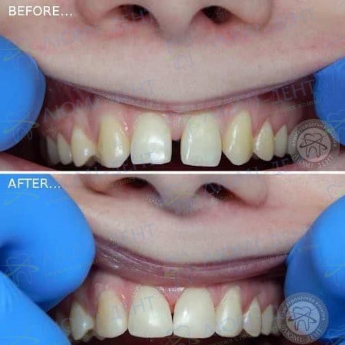 Художественная реставрация щели между зубами Люмидент