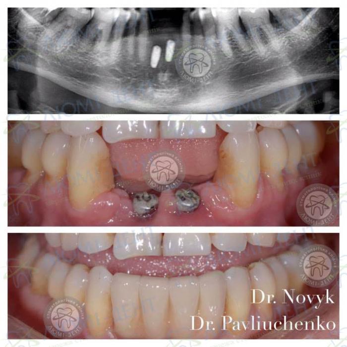 Имплантация зубов при диастеме фото