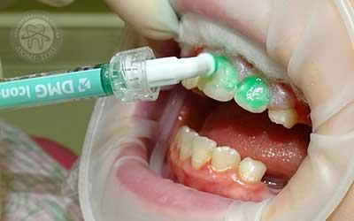 Імплантація емалі Icon зміцнення зубів фото Люмі-Дент
