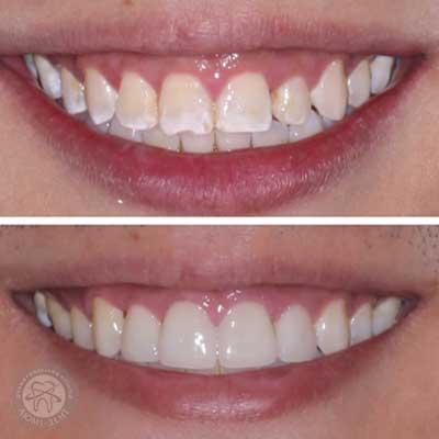 Відновлення емалі зубів фото Люмі-Дент