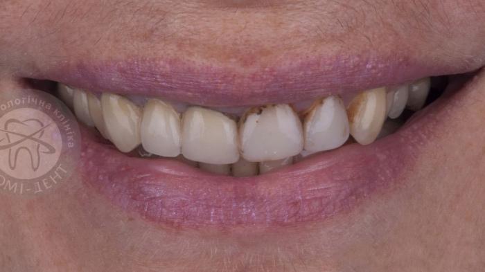 Відновлення зубної емалі зубів лікування Люмі-Дент фото
