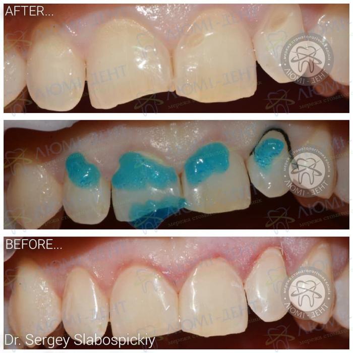 Зміцнення емалі зубів в домашніх умовах фото ЛюміДент