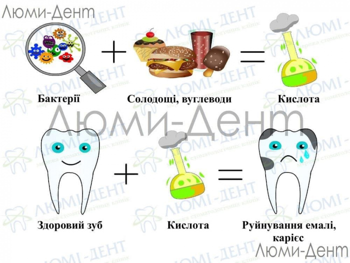Карієс зубів фото Люмідент