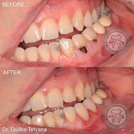 Клиновидный дефект зубов Киев фото Люми-Дент