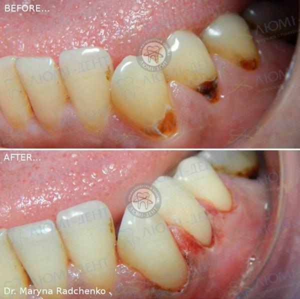 Клиновидный дефект зубов фото Киев Люми-Дент