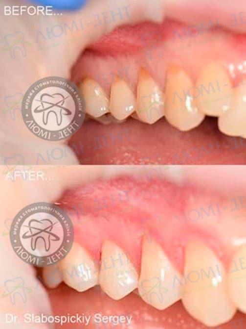 Клиноподібний дефект зубів фото Київ Люмі-Дент
