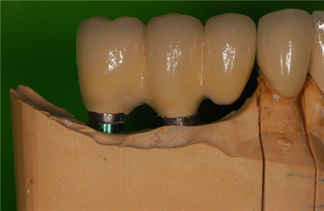 Консольний протез зуба фото ЛюміДент