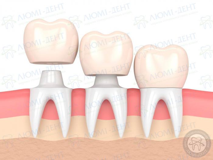 Что такое накладки на зубы фото ЛюмиДент