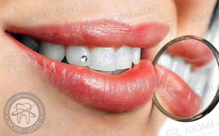 Эстетические накладки на зубы фото ЛюмиДент