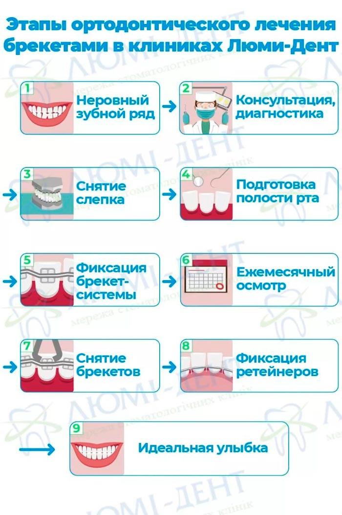 Накладки для зубов фото ЛюмиДент