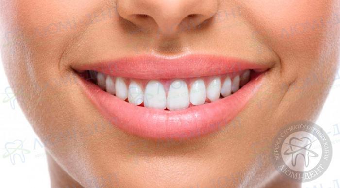 Накладки на зубы для исправления прикуса фото ЛюмиДент