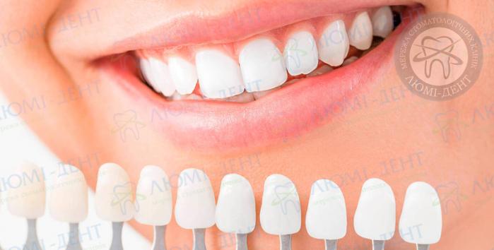 Накладки на зубы фото ЛюмиДент