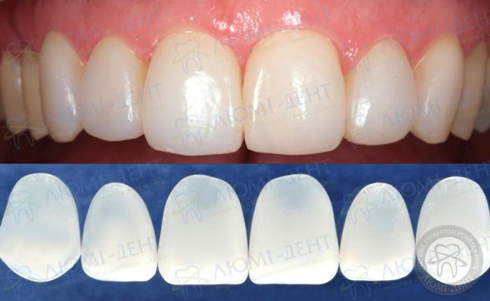 Зубные накладки фото ЛюмиДент