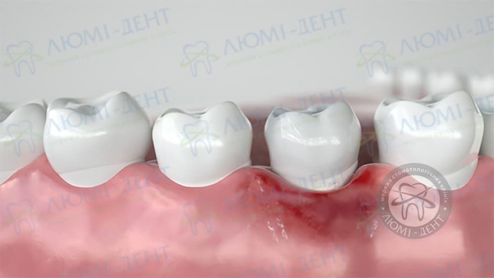 Осложнения после имплантации верхних зубов фото ЛюмиДент