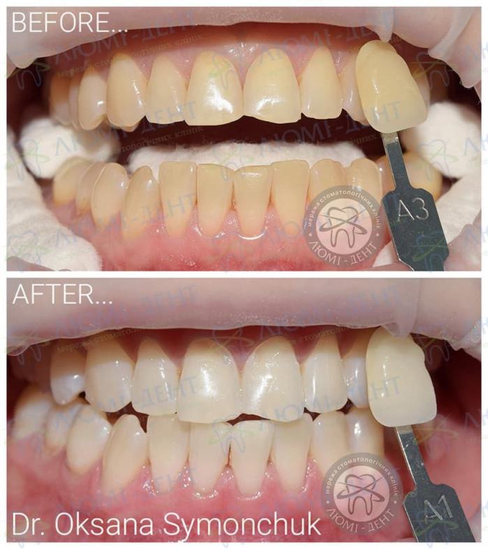 Отбеливание зубов opalescence фото ЛюмиДент