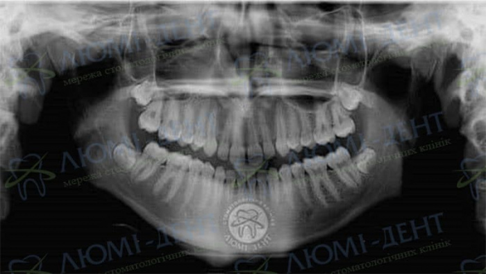 Диастема передних зубов фото Люмидент
