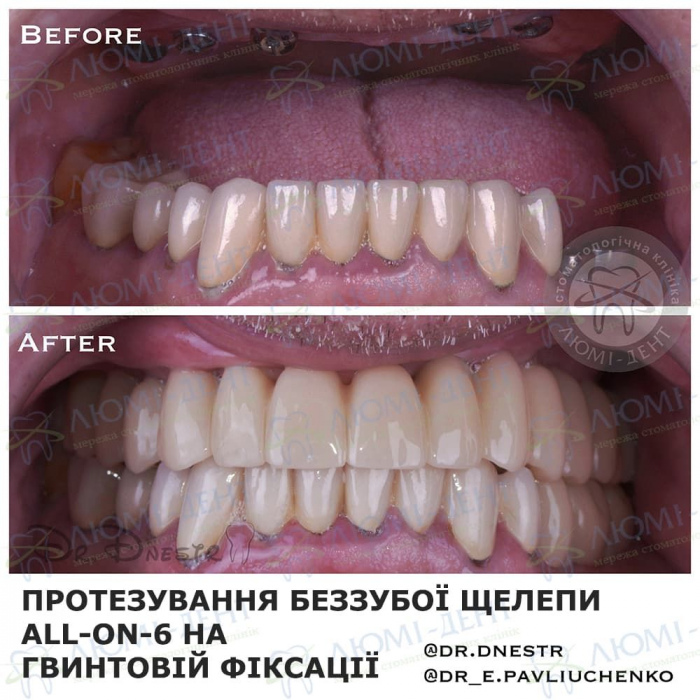 пародонтоз ясен зубів лікування фото ЛюміДент