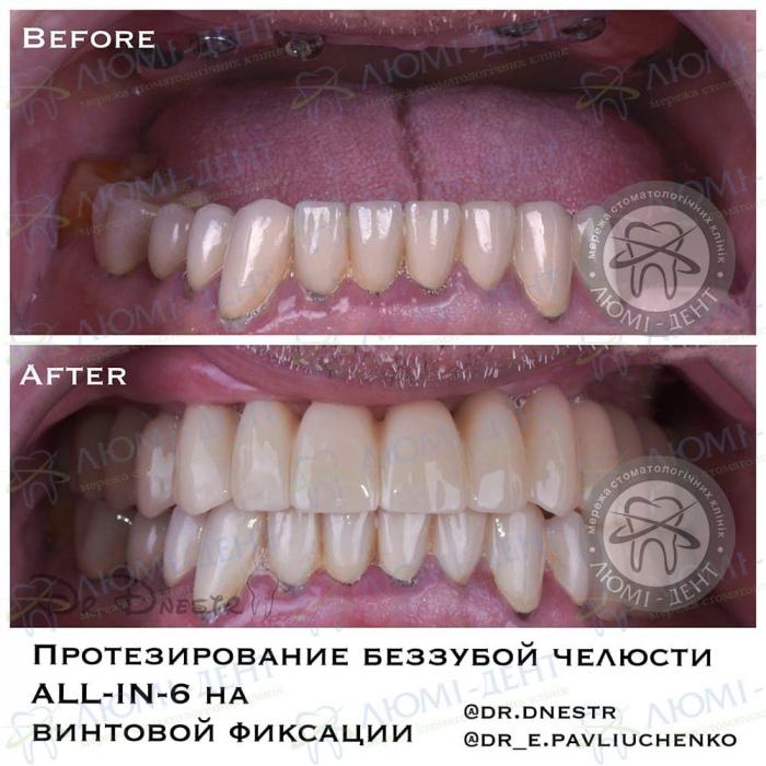 пародонтоз десен зубов лечение фото Люми-Дент