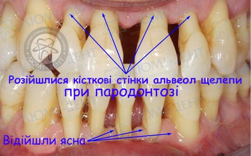 Пародонтоз зубів фото Люмідент