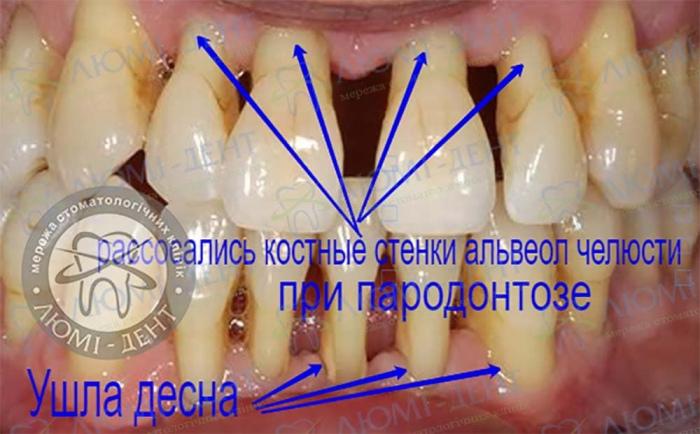 Пародонтоз зубов лечение фото Люми-Дент