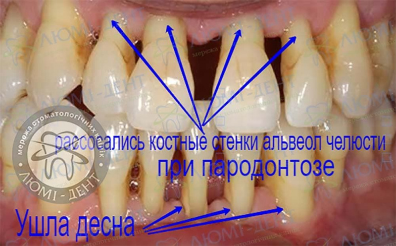 Пародонтоз зубов фото Люмидент