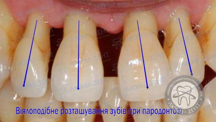 Пародонтоз ясен лікування фото ЛюміДент