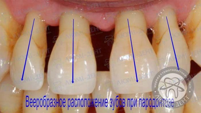 Пародонтоз десны лечение фото Люми-Дент