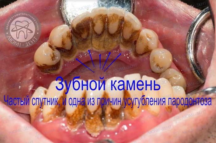 Причины пародонтоза десен фото Люми-Дент