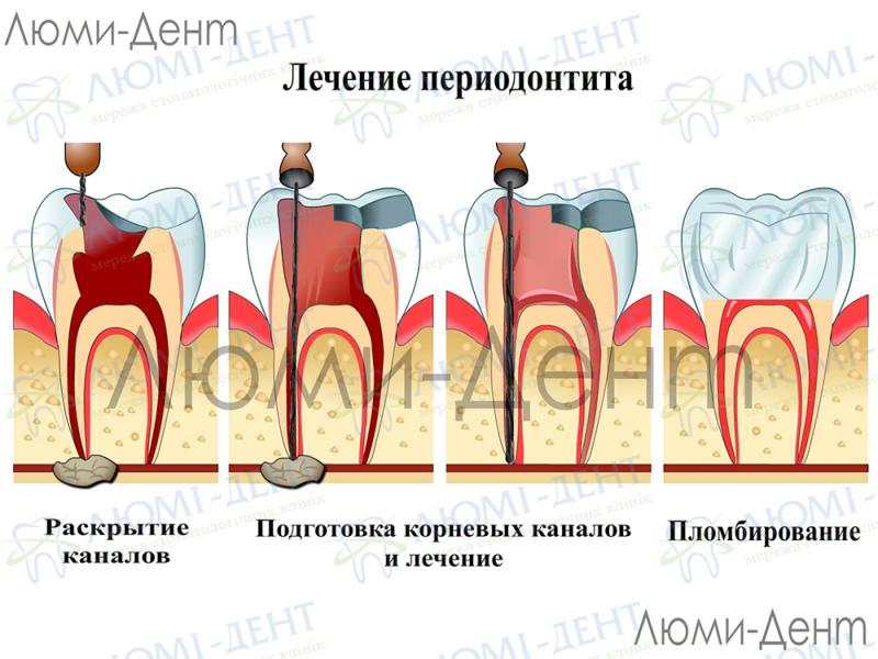 Болит зуб заболел фото Люми-Дент