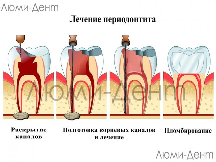 Лечение периодонтита фото Люмидент