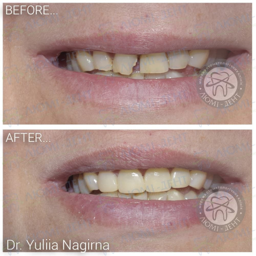Пломба на зуб установка фото Люмі-Дент