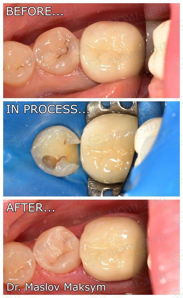 Пломба на зуб зубна пломба фото лікування Люмі-Дент Київ