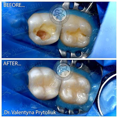 Пломба на зуб фото Люмі-Дент