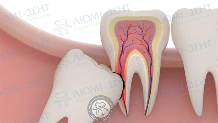Ускладнення після видалення зуба мудрості фото ЛюміДент