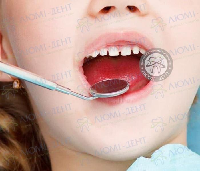 Профилактика диастемы - щели между передними зубами Люмидент