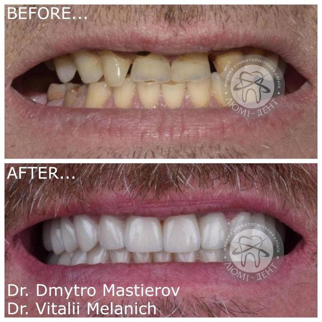 Виды протезирования зубов фото Люмидент