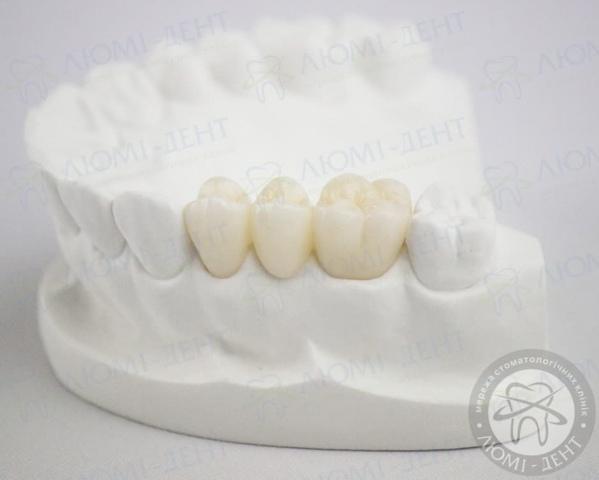 Протезирование зубов коронками фото Люмидент