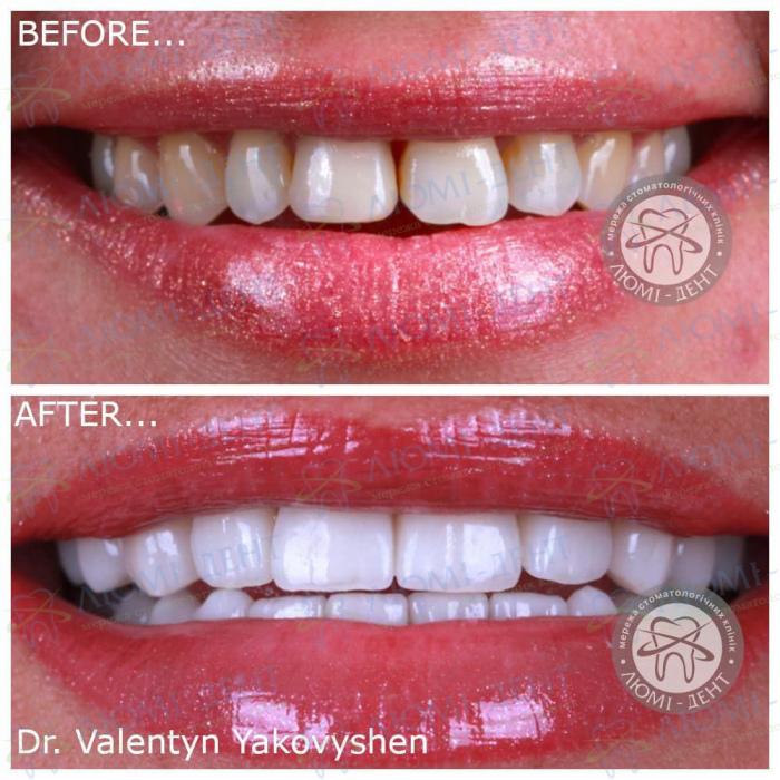 Протезирование зубов винирами фото Люмидент