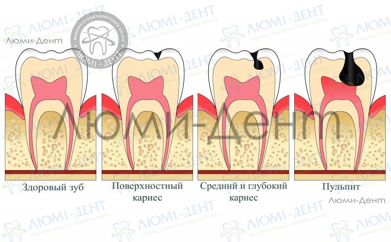 Зубная боль фото Люми-Дент