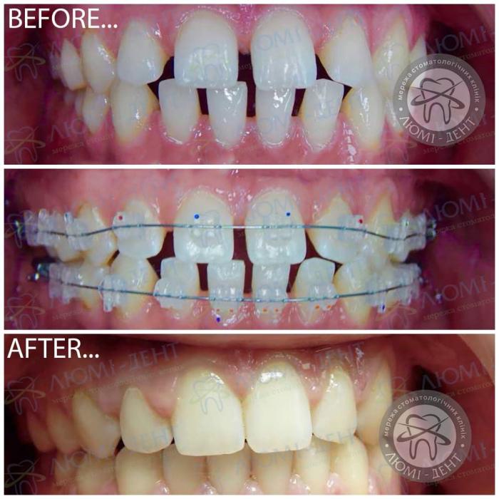 Редкие зубы фото ЛюмиДент