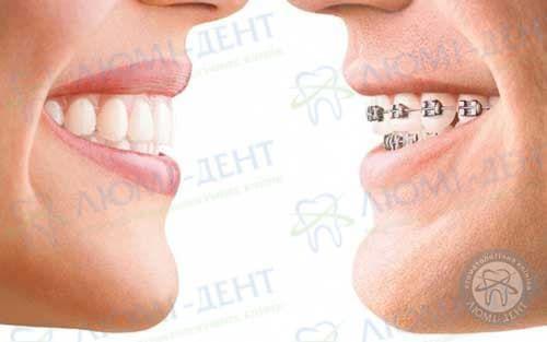 Ретейнер на зуби фото Люмі-Дент