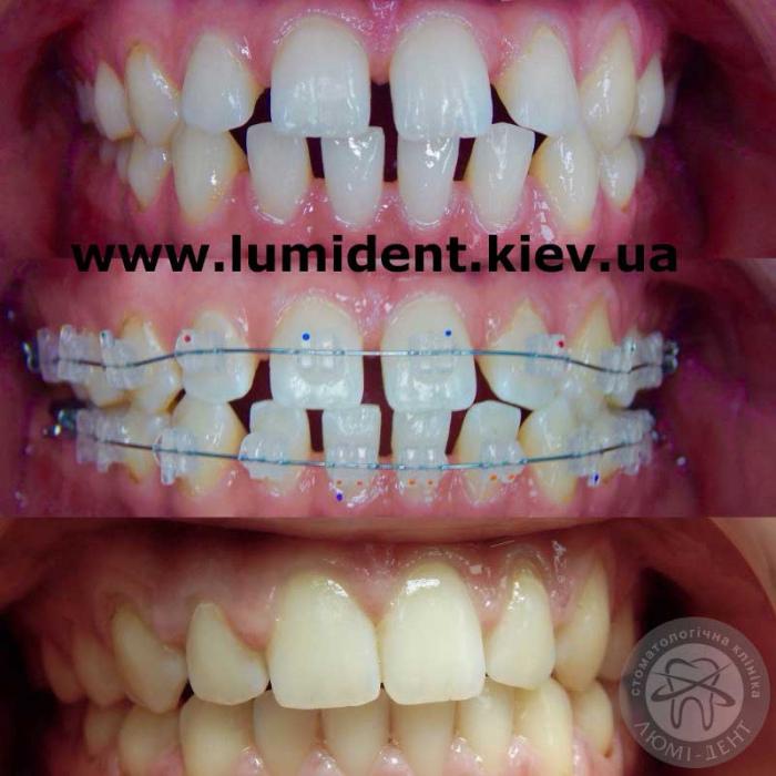 Фиксация шатающегося зуба в клинике киева Люми-Дент
