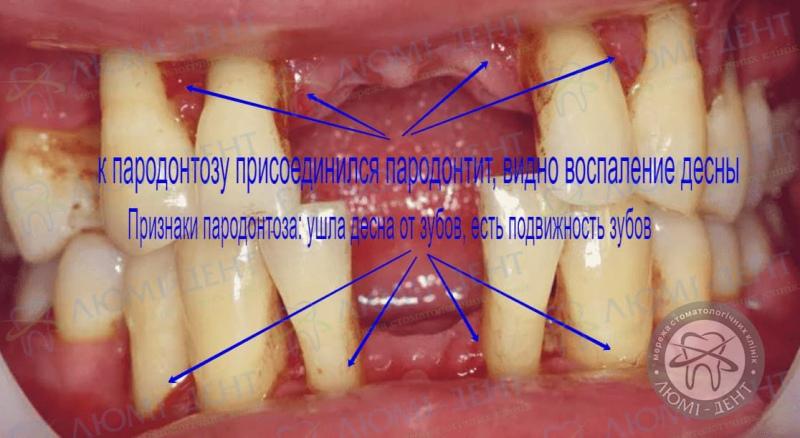 Подвижность зубов фото Люми-Дент